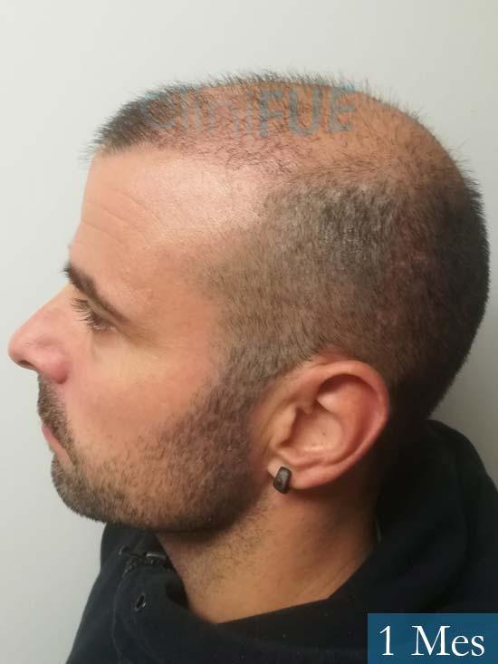 Gerardo-34-Barcelona-trasplante-capilar- 1 mes 4