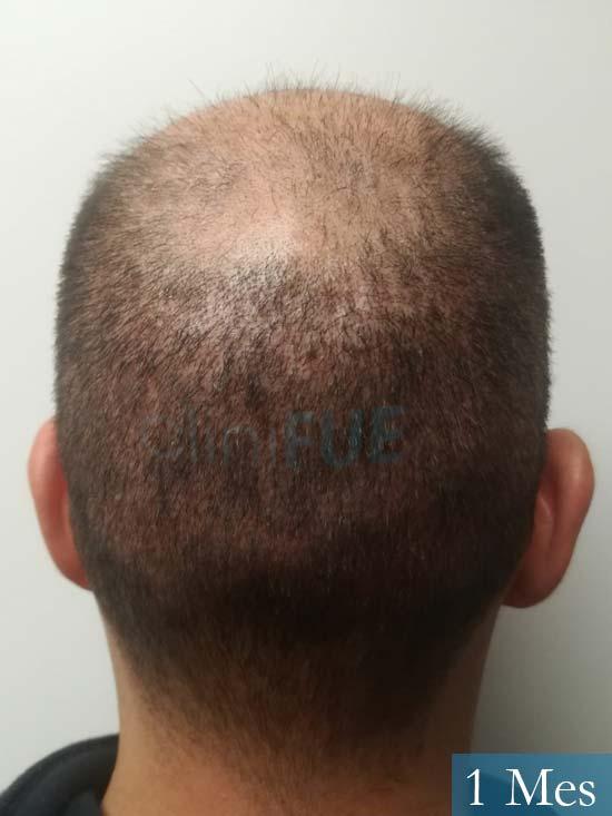 Gerardo-34-Barcelona-trasplante-capilar- 1 mes 5
