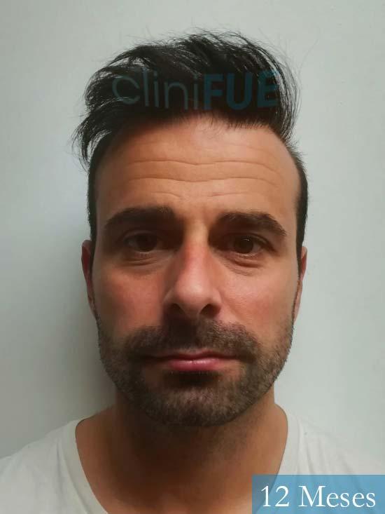 Gerardo-34-Barcelona-trasplante-capilar- 12 meses