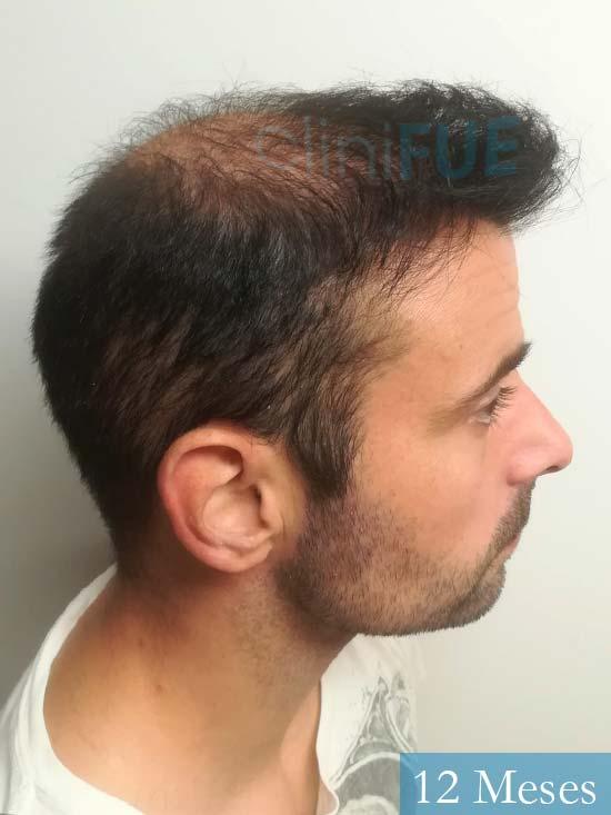 Gerardo-34-Barcelona-trasplante-capilar- 12 meses 4