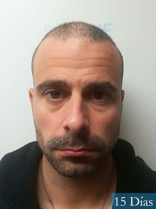 Gerardo-34-Barcelona-trasplante-capilar- 15 dias