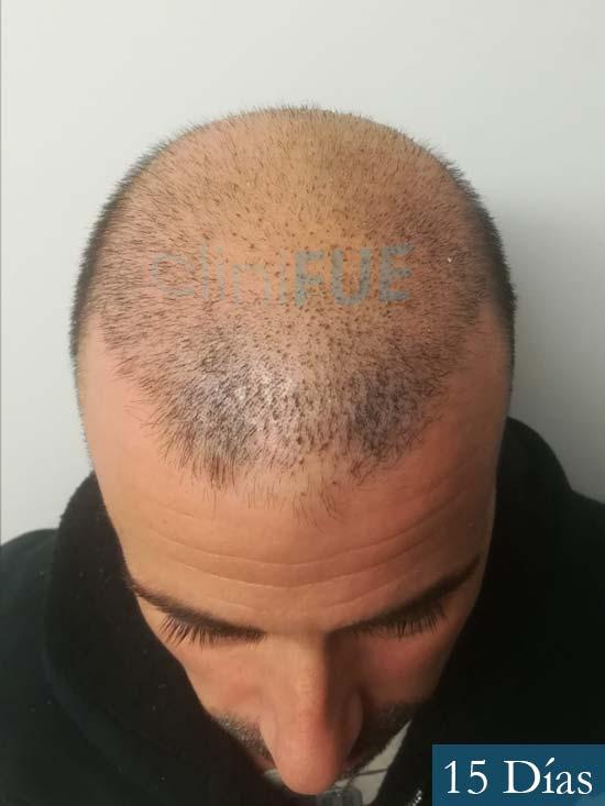 Gerardo-34-Barcelona-trasplante-capilar- 15 dias 2