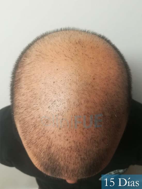 Gerardo-34-Barcelona-trasplante-capilar- 15 dias 3