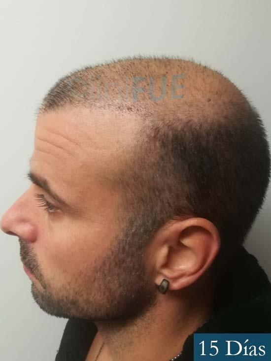 Gerardo-34-Barcelona-trasplante-capilar- 15 dias 4