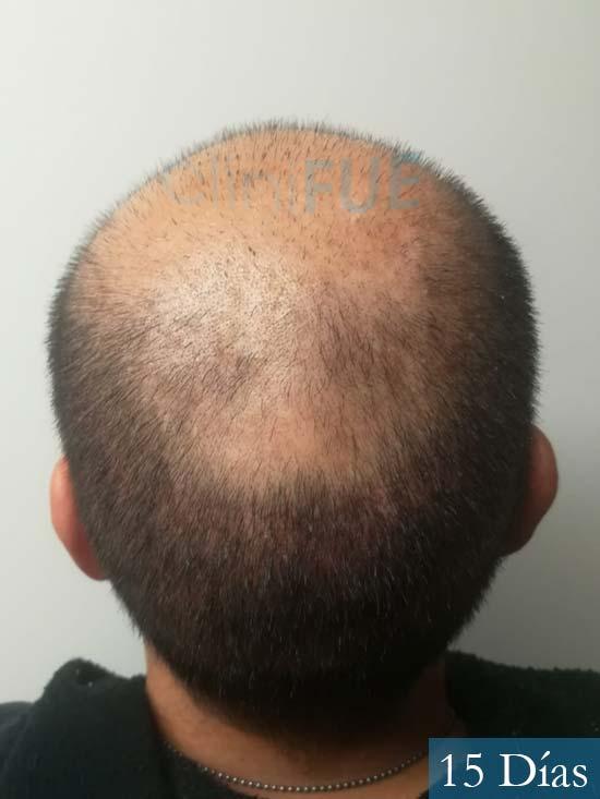 Gerardo-34-Barcelona-trasplante-capilar- 15 dias 5