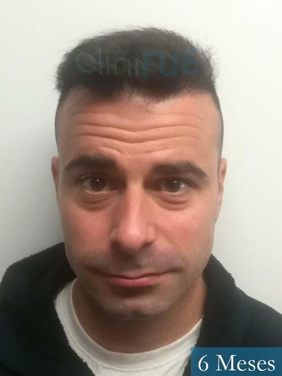Gerardo-34-Barcelona-trasplante-capilar- 6 meses