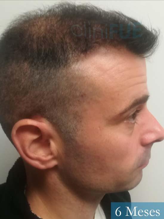 Gerardo-34-Barcelona-trasplante-capilar- 6 meses 4