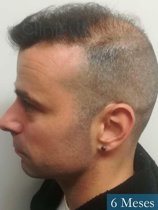 Gerardo-34-Barcelona-trasplante-capilar- 6 meses 5