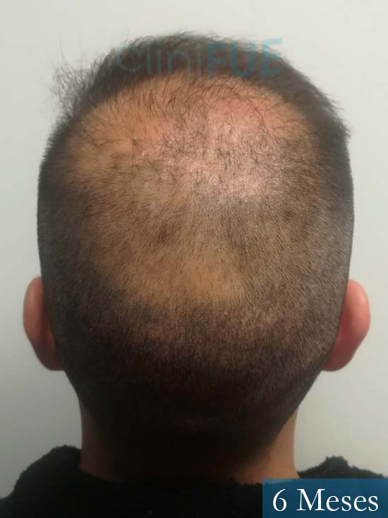 Gerardo-34-Barcelona-trasplante-capilar- 6 meses 6