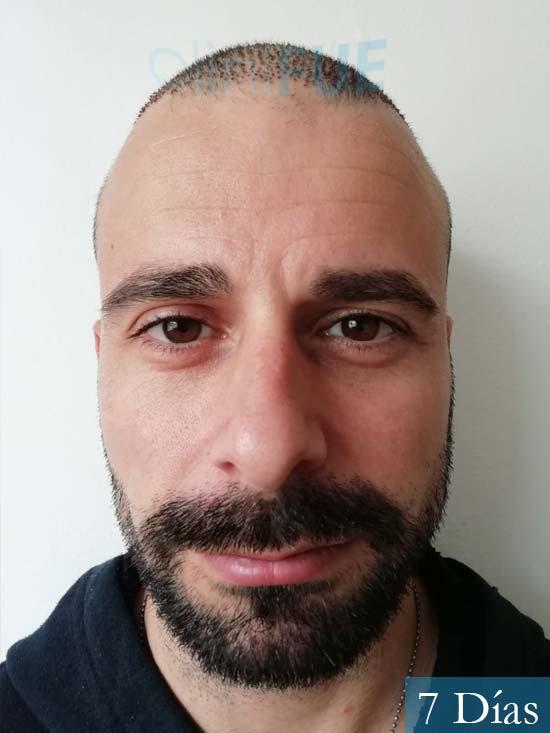 Gerardo-34-Barcelona-trasplante-capilar-7 dias
