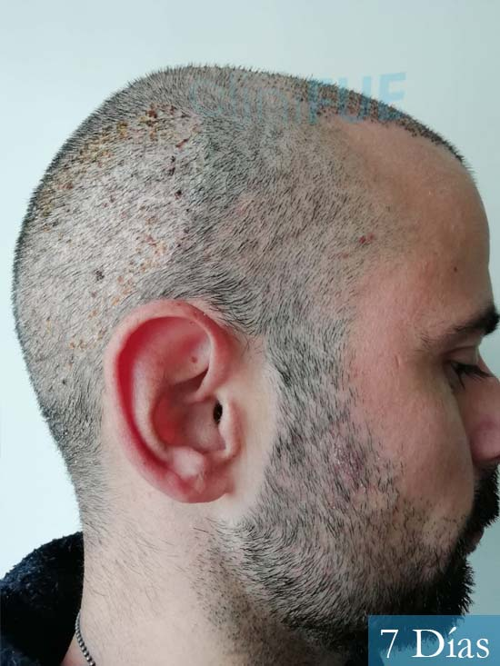 Gerardo-34-Barcelona-trasplante-capilar-7 dias 3