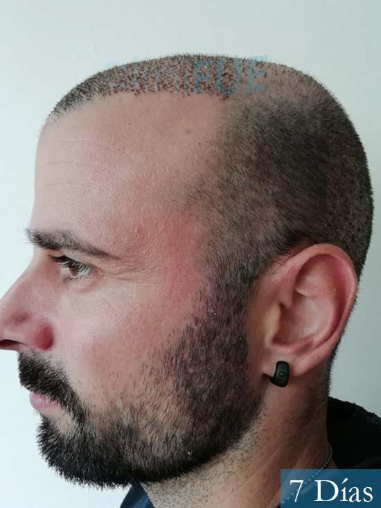 Gerardo-34-Barcelona-trasplante-capilar-7 dias 4