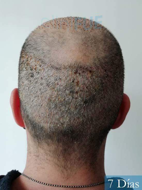 Gerardo-34-Barcelona-trasplante-capilar-7 dias 5