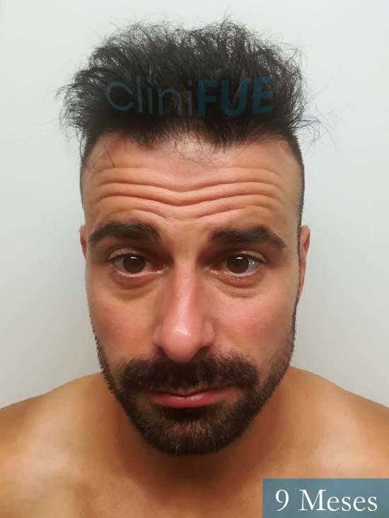 Gerardo-34-Barcelona-trasplante-capilar- 9 meses