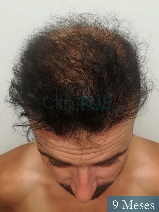 Gerardo-34-Barcelona-trasplante-capilar- 9 meses 2