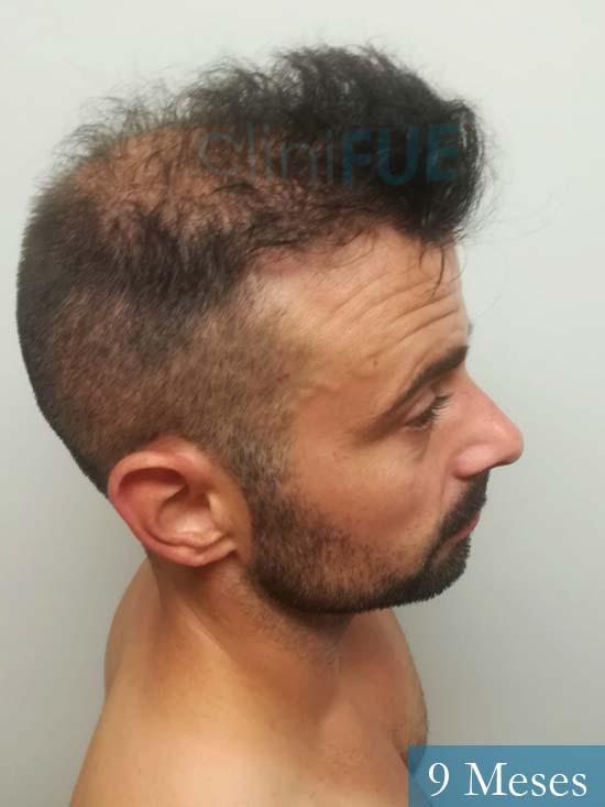 Gerardo-34-Barcelona-trasplante-capilar- 9 meses 3