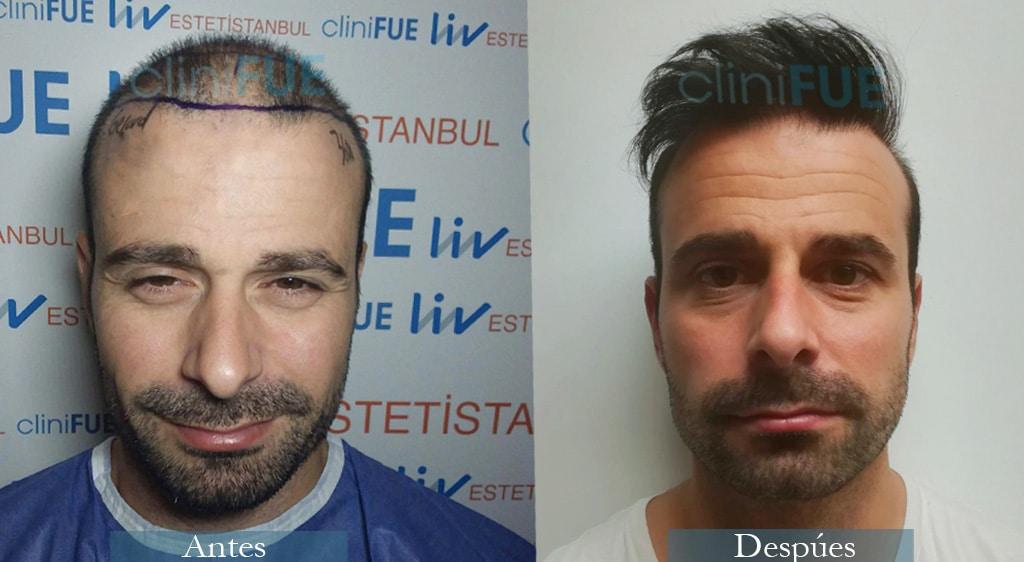 Injerto capilar de Gerard 34 Años de Barcelona con cliniFUE