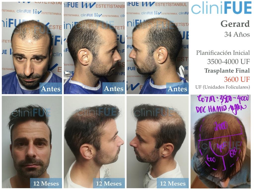 Gerardo-34-Barcelona-trasplante-capilar