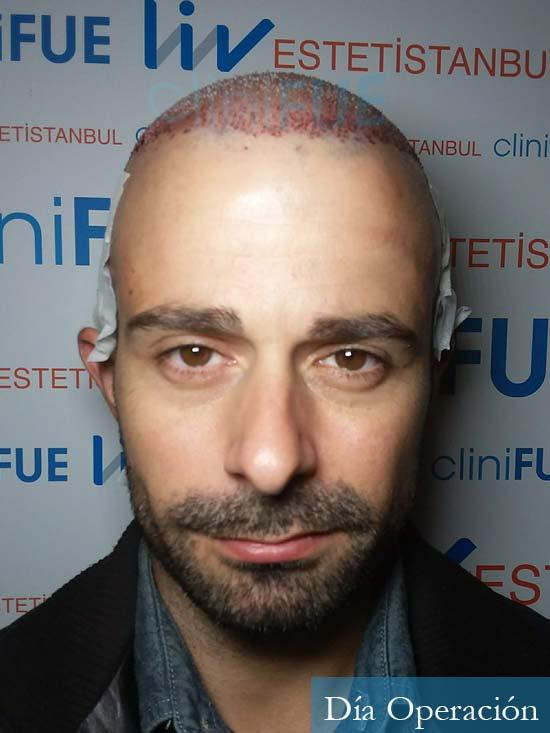 Gerardo-34-Barcelona-trasplante-capilar- dia operacion