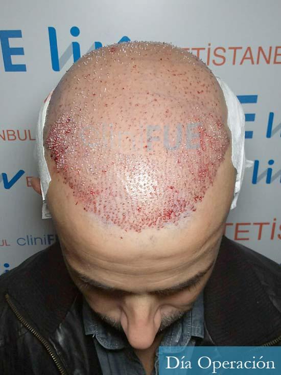 Gerardo-34-Barcelona-trasplante-capilar- dia operacion 2