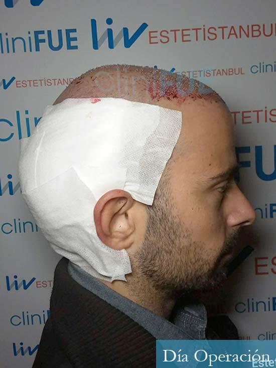 Gerardo-34-Barcelona-trasplante-capilar- dia operacion 3
