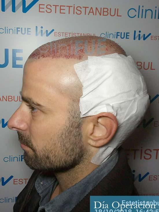 Gerardo-34-Barcelona-trasplante-capilar- dia operacion 5