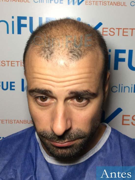 Gerardo-34-Barcelona-trasplante-capilar- antes