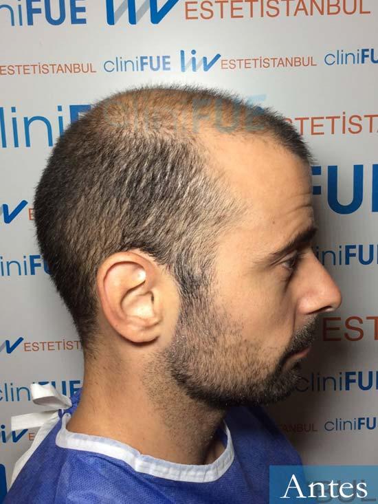 Gerardo-34-Barcelona-trasplante-capilar- antes 2