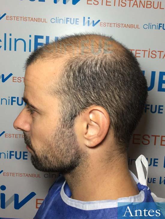 Gerardo-34-Barcelona-trasplante-capilar- antes 3