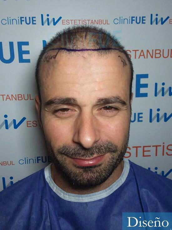 Gerardo-34-Barcelona-trasplante-capilar- diseno