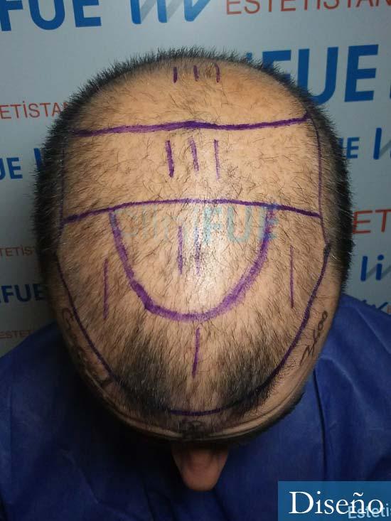 Gerardo-34-Barcelona-trasplante-capilar- diseno 2