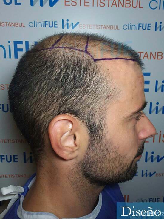 Gerardo-34-Barcelona-trasplante-capilar- diseno 3