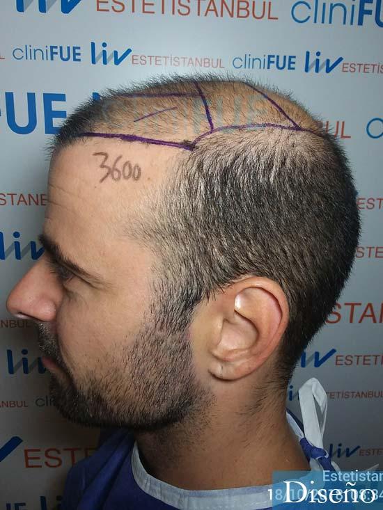 Gerardo-34-Barcelona-trasplante-capilar- diseno 4