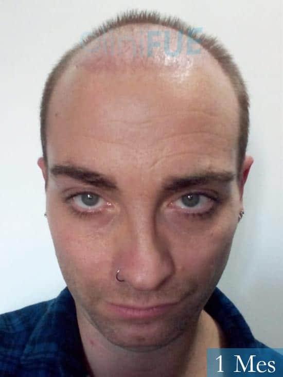 Guillermo-40-anos-islas baleares-trasplante-turquia- 1 mes