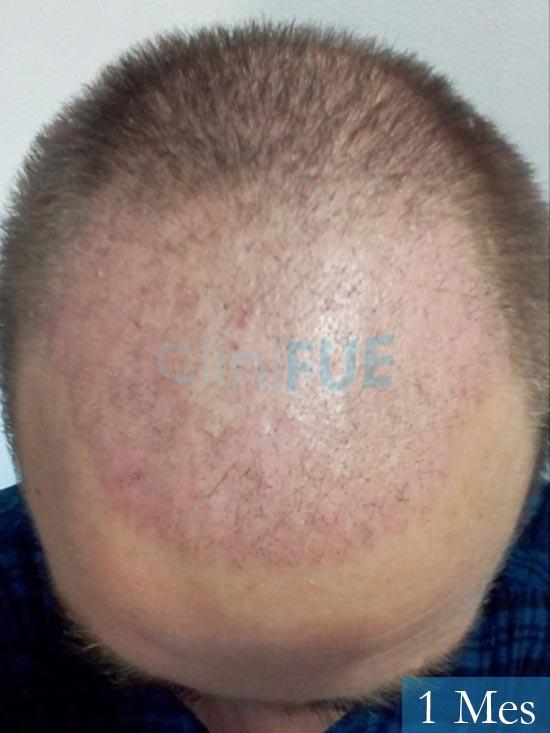 Guillermo-40-anos-islas baleares-trasplante-turquia- 1 mes 2