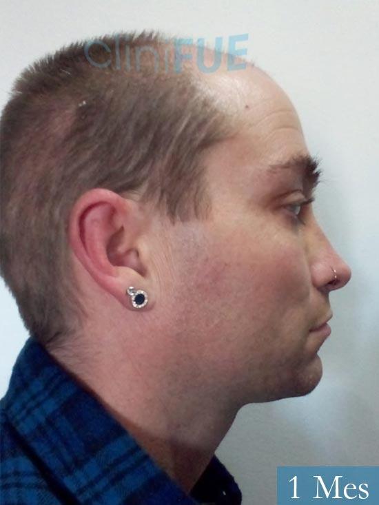 Guillermo-40-anos-islas baleares-trasplante-turquia- 1 mes 3