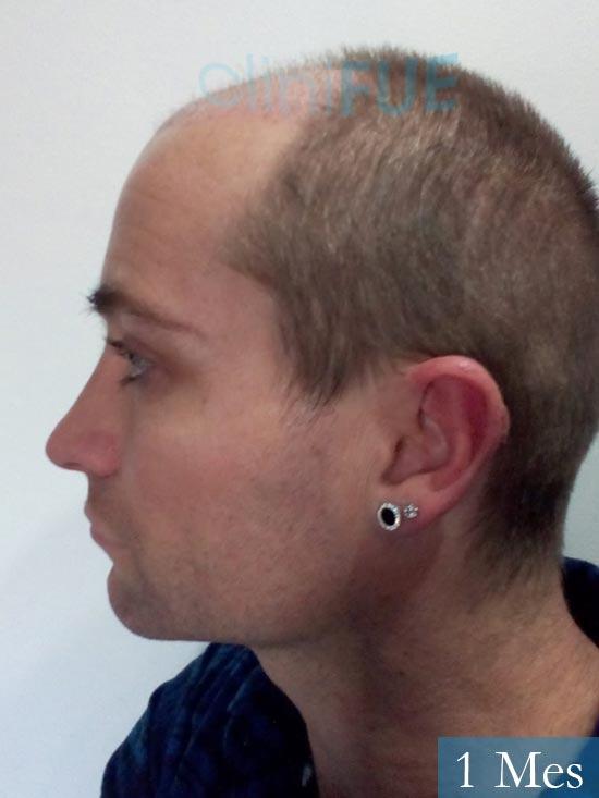 Guillermo-40-anos-islas baleares-trasplante-turquia- 1 mes 4
