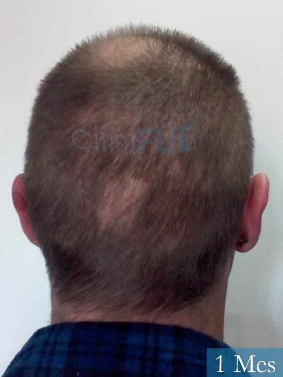 Guillermo-40-anos-islas baleares-trasplante-turquia- 1 mes 5