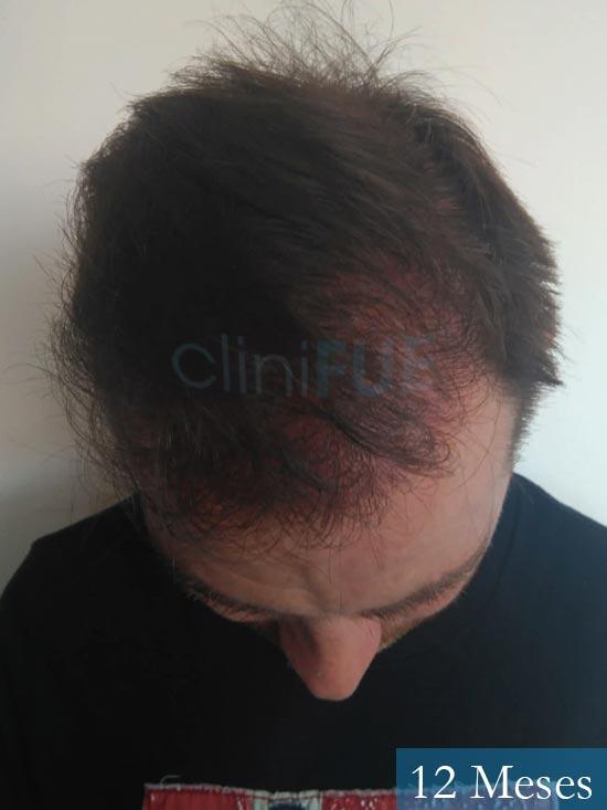 Guillermo-40-anos-islas baleares-trasplante-turquia- 12 meses 2