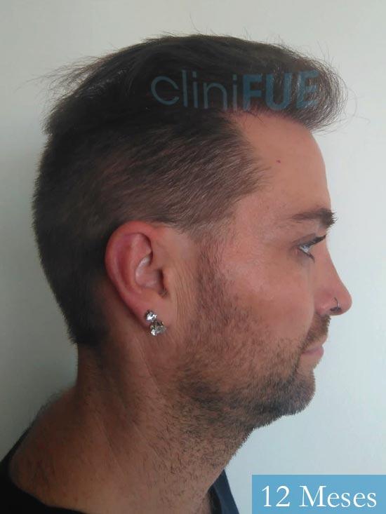Guillermo-40-anos-islas baleares-trasplante-turquia- 12 meses 3