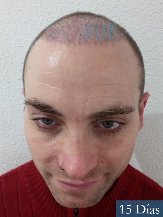 Guillermo-40-anos-islas baleares-trasplante-turquia- 15 dias
