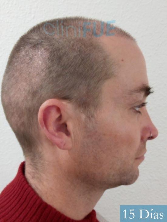 Guillermo-40-anos-islas baleares-trasplante-turquia- 15 dias 3