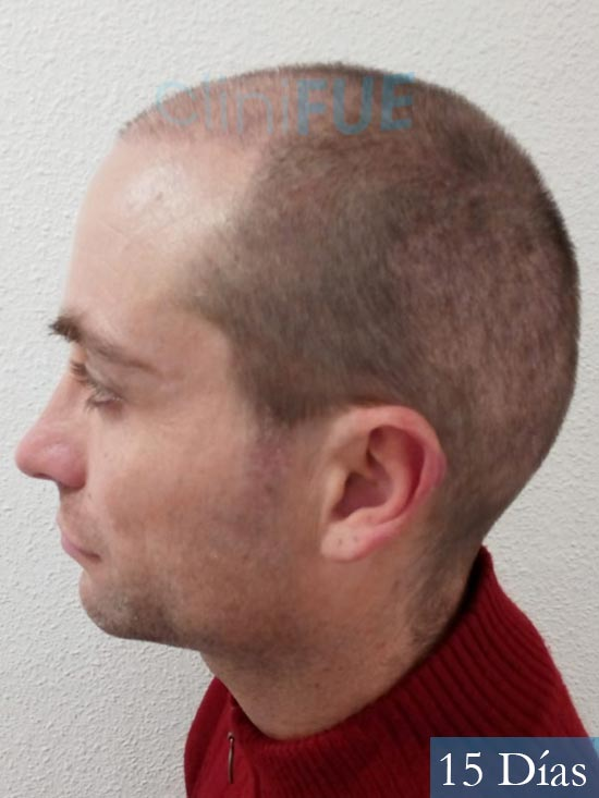 Guillermo-40-anos-islas baleares-trasplante-turquia- 15 dias 4