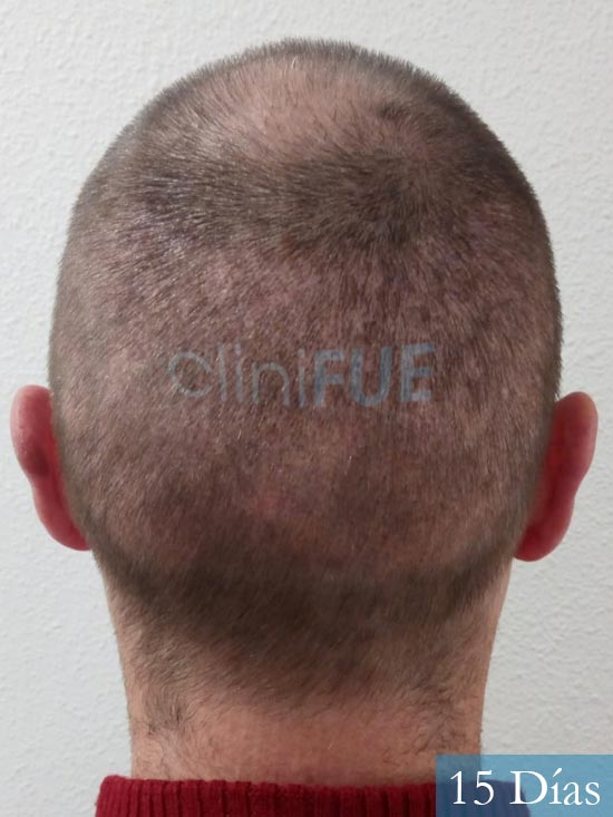 Guillermo-40-anos-islas baleares-trasplante-turquia- 15 dias 5