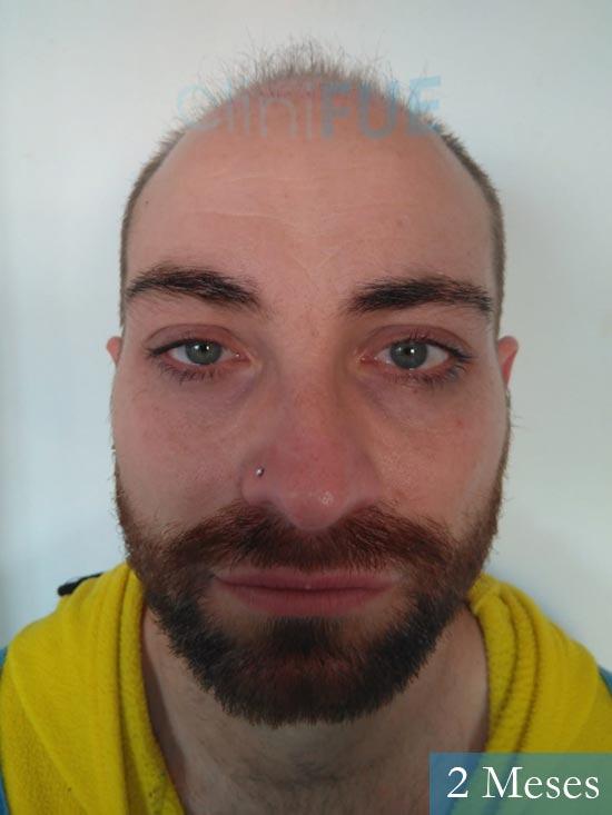 Guillermo-40-anos-islas baleares-trasplante-turquia- 2 mes