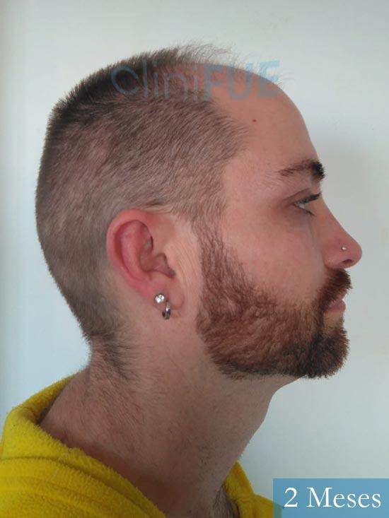 Guillermo-40-anos-islas baleares-trasplante-turquia- 2 meses 3