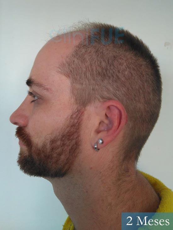Guillermo-40-anos-islas baleares-trasplante-turquia- 2 meses 4