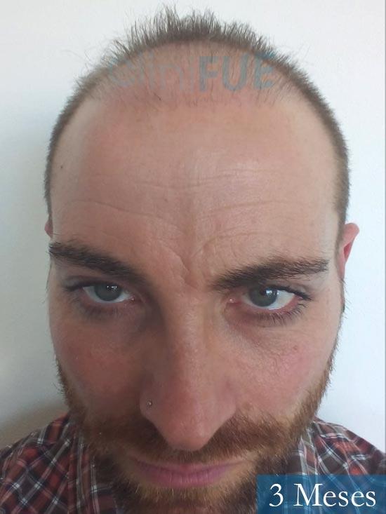 Guillermo-40-anos-islas baleares-trasplante-turquia- 3 meses
