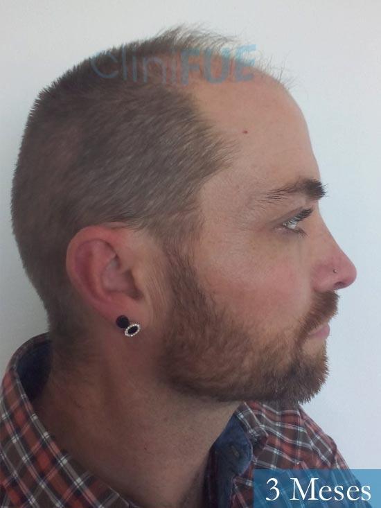 Guillermo-40-anos-islas baleares-trasplante-turquia- 3 meses 3