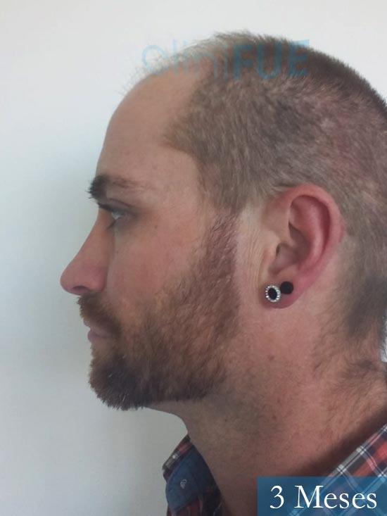 Guillermo-40-anos-islas baleares-trasplante-turquia- 3 meses 4